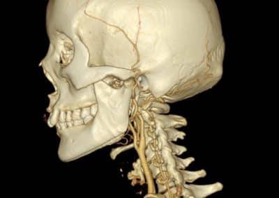 Detailaufnahme Kopf und Nacken