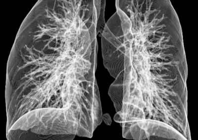 Röntgenaufnahme Lunge