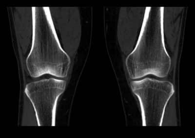 Röntgenaufnahme Knie