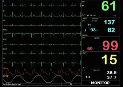 Macs 30 multi parameter patient monitor