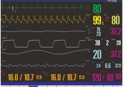 Macs 50 modular patient monitor