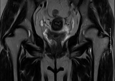 Marcom 0.35T permanent magnet MRI scanner