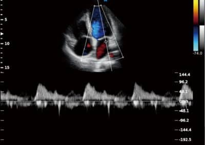 Ultraschallsystem Sonos 10
