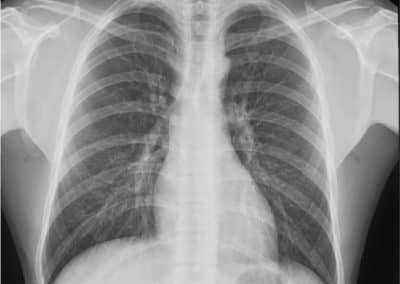 Röntgenaufnahme Xenox DR500