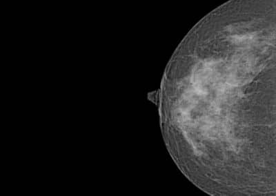 Système de mammographie Xenox S100