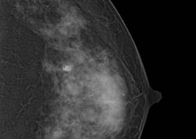 Système de mammographie Xenox S200